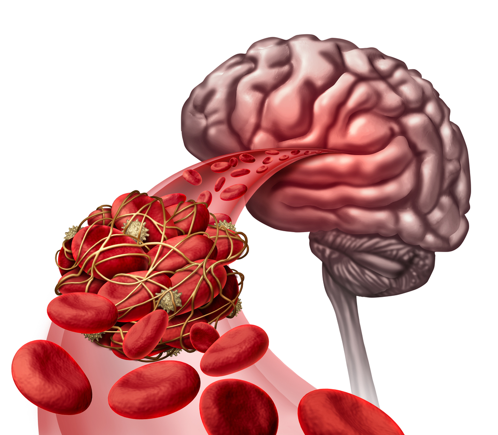 Brain Blood Clot